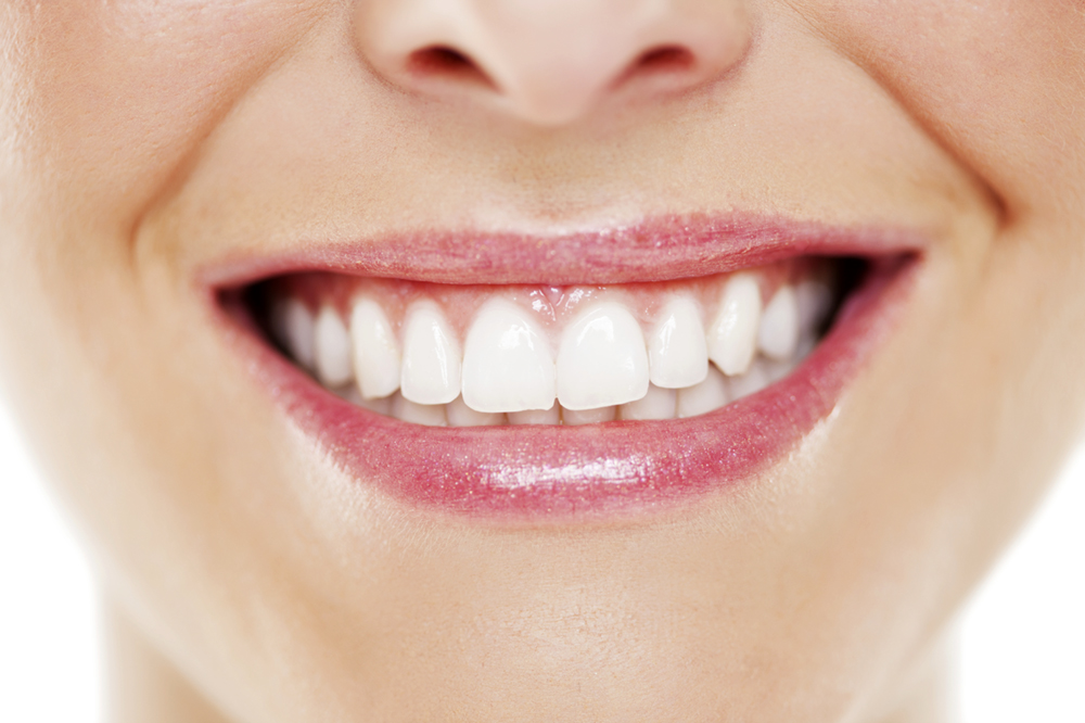 A close-up of a woman's smile, without any gaps between her teeth